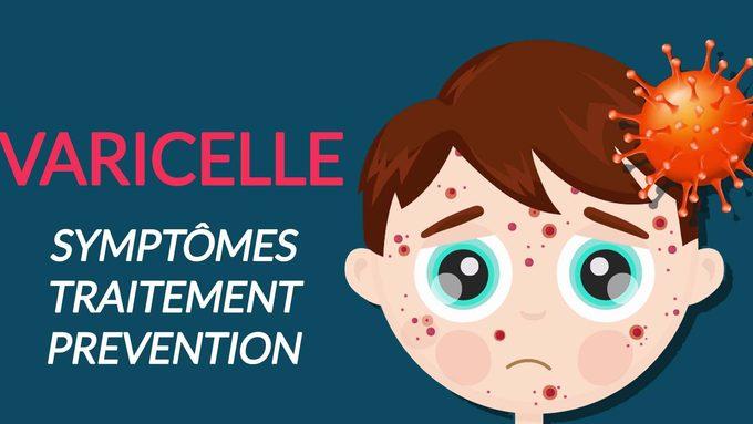 Varicelle-Des-symptomes-a-la-guerison.jpg